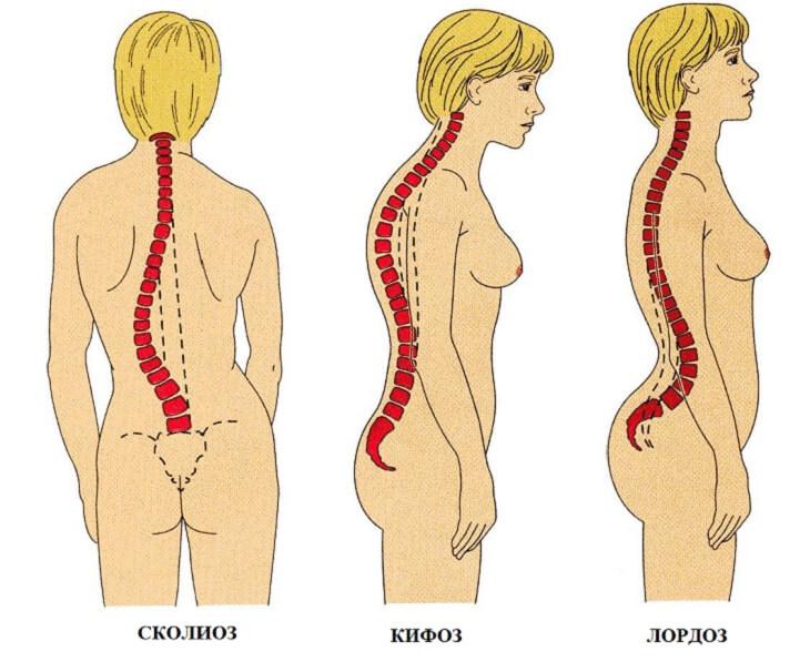 Гимнастика для левостороннего грудопоясничного сколиоза