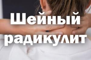 Шейный радикулит, симптомы, лечение