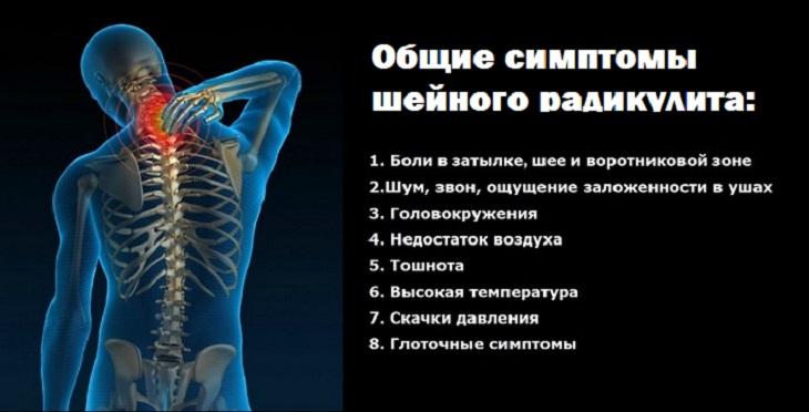 Симптомы радикулита человека