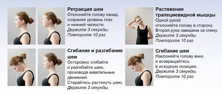 Упражнения для шеи при радикулите