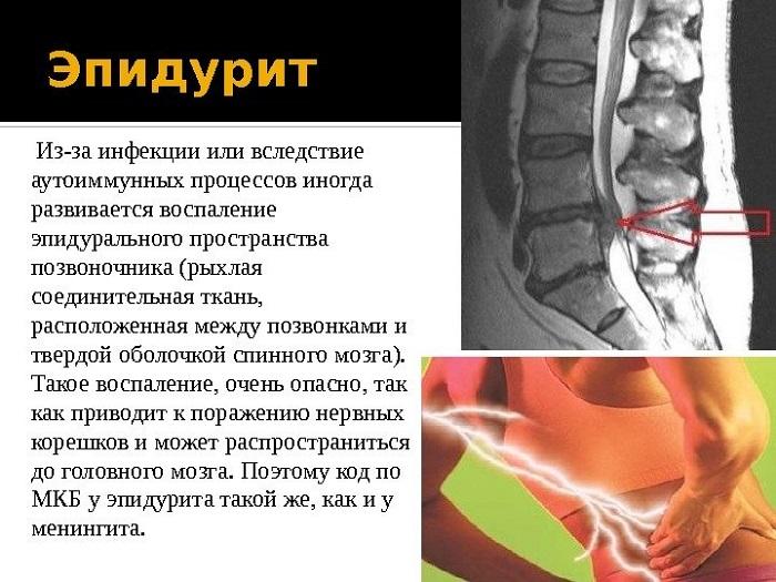 Характеристика эпидурита