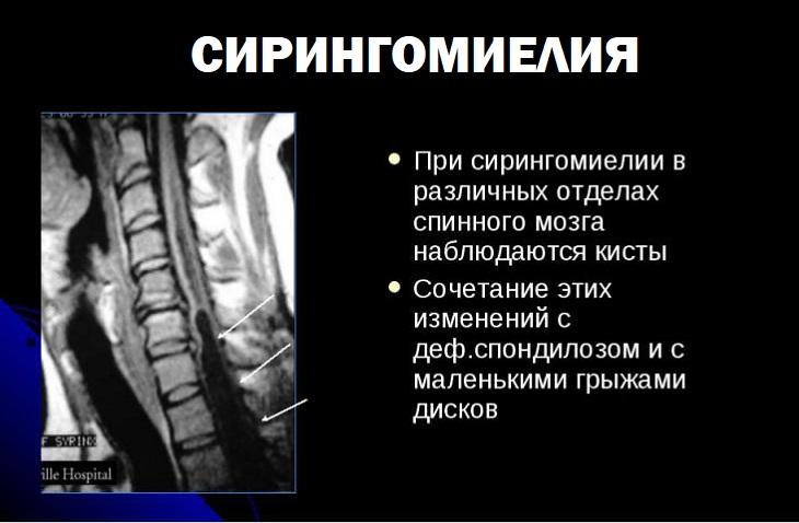 Характеристики сирингомиелии у человека