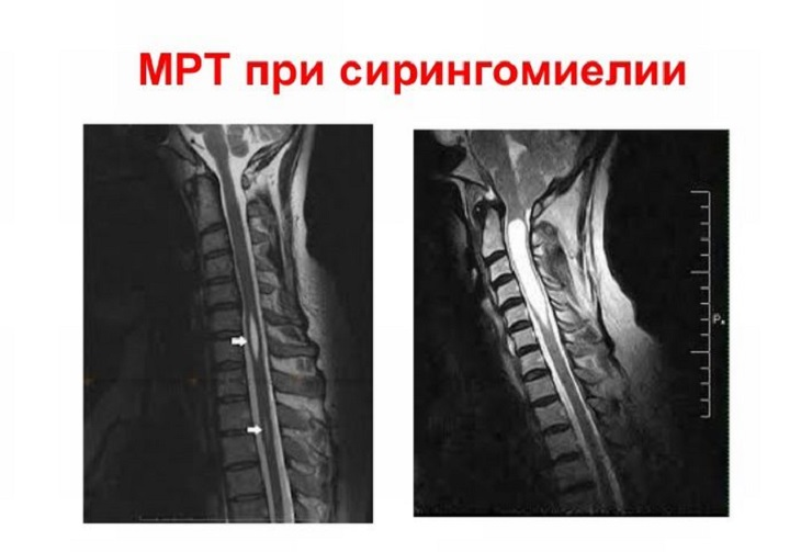 МРТ при сирингомиелии у человека